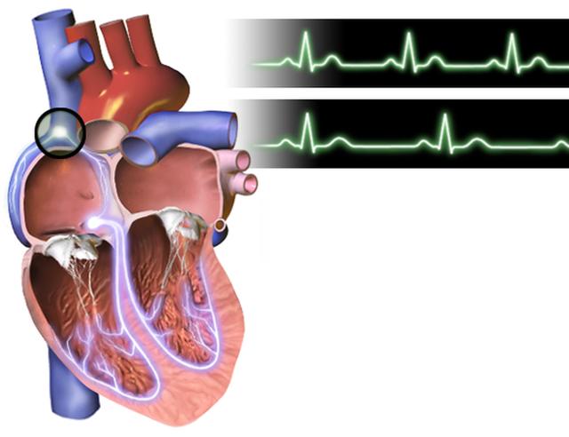 Ranh giới sinh tử của người bị huyết áp chính là ăn uống, lối sống: Đây là phao cứu sinh - Ảnh 4.
