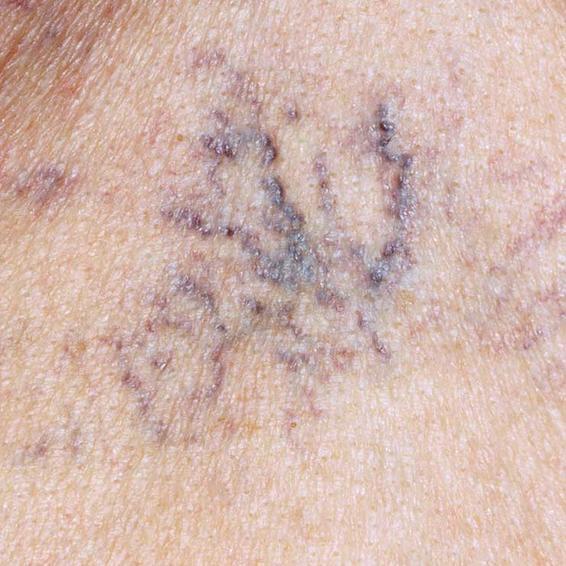 Những vết như mạch mạng nhện này thường xuất hiện ngực.