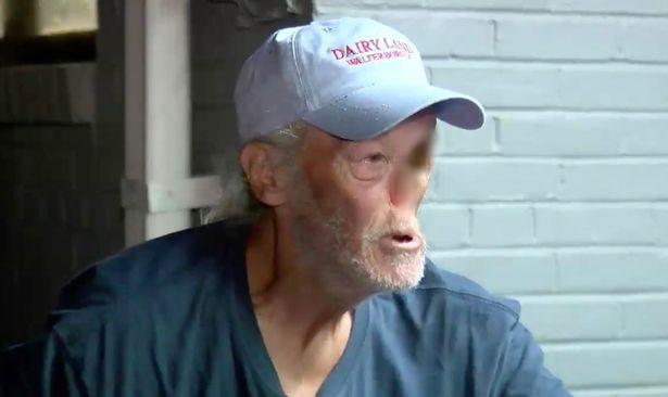 Với khuôn mặt biến dạng vì ung thư, người đàn ông bị đuổi khỏi cửa hàng vì bà chủ sợ dọa khách bỏ chạy - Ảnh 1.