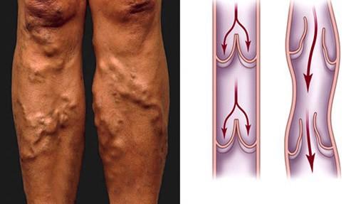 Căn bệnh tưởng vô hại, nhiều người bỏ qua nhưng thật ra rất nguy hiểm, có thể ung thư hoá - Ảnh 2.