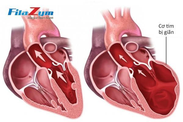Các dấu hiệu tố bệnh tim khách hàng không nên bỏ qua - Ảnh 1.