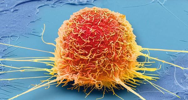 Cẩn thận 10 triệu chứng là điềm báo tiền ung thư mà nhiều người còn mơ hồ và không nhận ra - Ảnh 1.