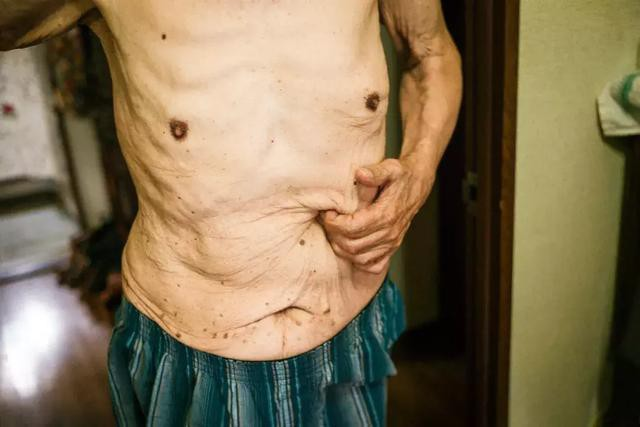 3 năm, 33 bức ảnh, nhiếp ảnh gia ghi lại quá trình trước khi cha từ giã cõi đời vì ung thư: Đừng để người thân một mình chống chọi - Ảnh 13.