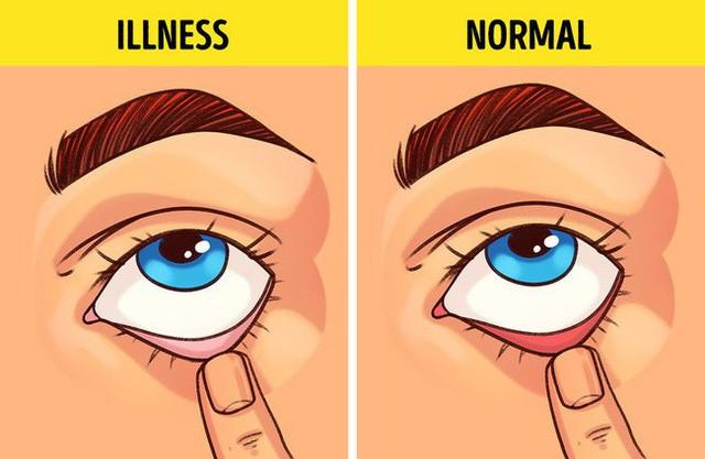 Bài kiểm tra sức khỏe đơn giản bạn có thể tự làm tại nhà để biết mình có bị 9 bệnh này hay không  - Ảnh 3.