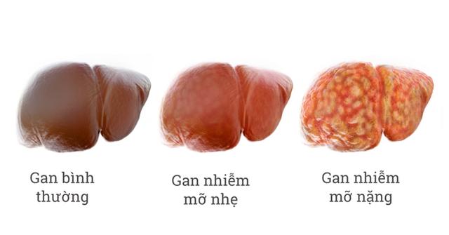 Nguyên nhân hình thành bệnh gan nhiễm mỡ: Dù ở lứa tuổi nào bạn cũng nên biết để tránh  - Ảnh 1.