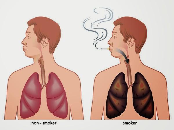 Một số phương pháp tự nhiên mà ai cũng có thể thực hiện để làm sạch phổi của mình - Ảnh 1.