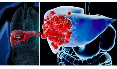 Ung thư gan đứng đầu trong các bệnh ung thư ở VN: GĐ BV Ung bướu chỉ 5 dấu hiệu cảnh báo - Ảnh 2.