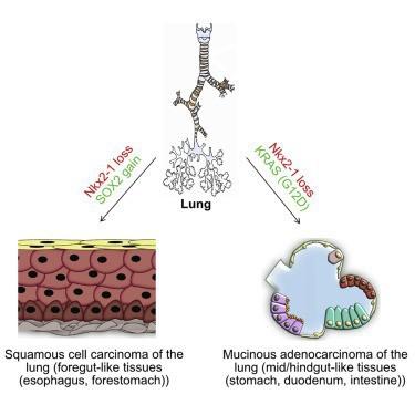 Sự kì dị của ung thư: Khi lá phổi bị biến thành dạ dày và ruột - Ảnh 2.