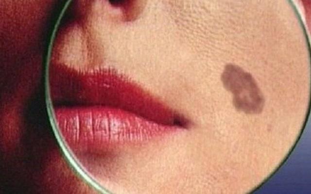 Căn bệnh ung thư từ nốt ruồi, di căn cực nhanh: Dấu hiệu khác biệt cần khám ngay - Ảnh 2.