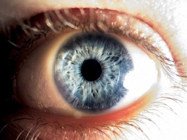 Từ trường hợp người đàn ông bị đột quỵ mắt, bác sĩ chỉ ra dấu hiệu đột quỵ mắt cần chú ý - Ảnh 1.