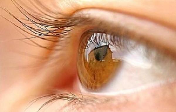 Từ trường hợp người đàn ông bị đột quỵ mắt, bác sĩ chỉ ra dấu hiệu đột quỵ mắt cần chú ý - Ảnh 3.