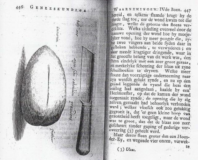 Tranh thủ lúc vợ đi chợ, người thợ rèn Hà Lan ở nhà tự phẫu thuật lấy sỏi bàng quang ra ngoài - Ảnh 2.