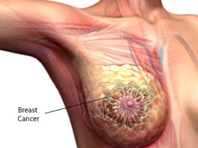 Cô gái 22 tuổi phát hiện ung thư vú: Mong mọi người hãy làm điều này để tránh bệnh ung thư - Ảnh 2.