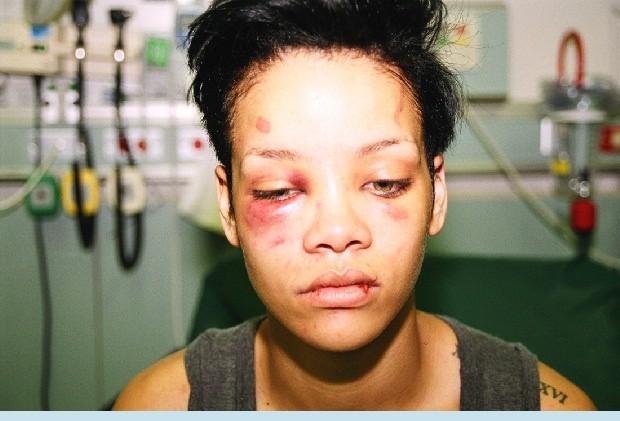 Rihanna: Từ tuổi thơ và mối tình đầu ngập tràn trong bạo lực đến nữ ca sĩ giàu nhất thế giới! - Ảnh 3.