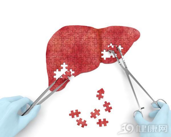 6 nhóm người có nguy cơ cao bị gan nhiễm mỡ: Cần điều chỉnh ngay trước khi quá muộn - Ảnh 1.