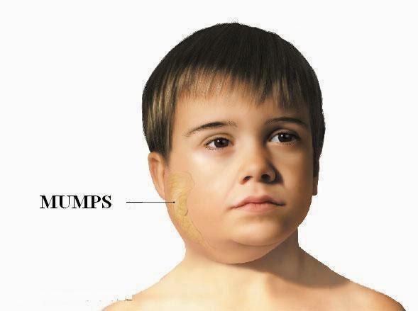 Nhờ vắc-xin, con người đã loại bỏ được 6 dịch bệnh nguy hiểm này - Ảnh 1.