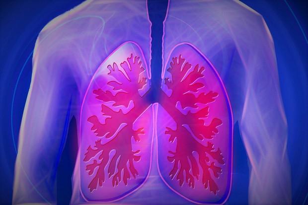 Hà Nội ngập trong sương mù vì ô nhiễm không khí, uống ngay loại nước detox này mỗi ngày để thải độc phổi hiệu quả - Ảnh 5.