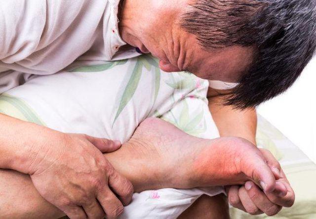 Bệnh Gout đang ngày càng trẻ hóa, nguyên nhân đến từ những thói quen không ngờ này - Ảnh 1.
