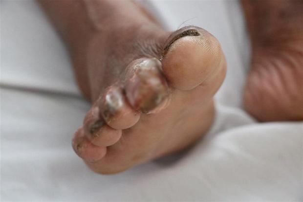 Người đàn ông ở Hà Tĩnh bị vi khuẩn ăn thịt người tấn công ngón chân - Ảnh 2.