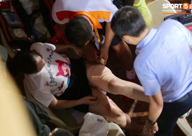 Vụ cổ động viên nữ trọng thương do trúng pháo sáng: Công an triệu tập 14 người quê ở Nam Định để điều tra - Ảnh 1.