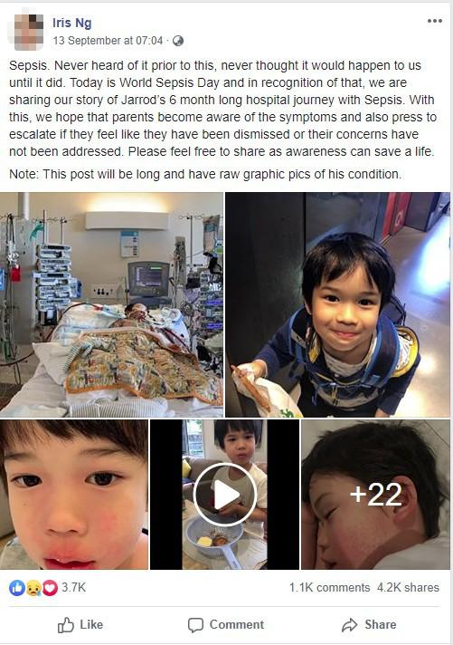 Bé trai 4 tuổi phải nằm viện 6 tháng vì bị nhiễm trùng máu và mắc bệnh do vi khuẩn ăn thịt, triệu chứng ban đầu chỉ là đau chân - Ảnh 1.