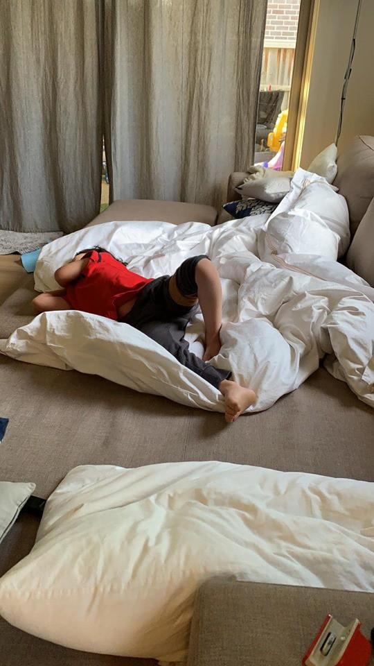 Bé trai 4 tuổi phải nằm viện 6 tháng vì bị nhiễm trùng máu và mắc bệnh do vi khuẩn ăn thịt, triệu chứng ban đầu chỉ là đau chân - Ảnh 4.