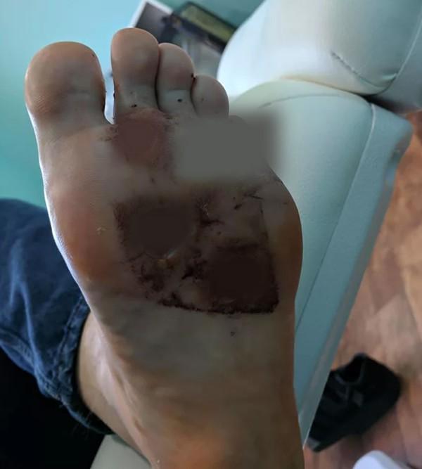 Vì thói quen đi chân trần trong phòng tắm mà người đàn ông này bị vi khuẩn ăn thịt người tấn công  - Ảnh 2.
