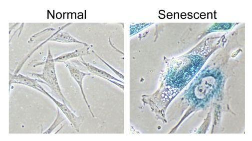 Senolytics: Lĩnh vực khoa học mới nổi giúp con người trẻ mãi không già - Ảnh 1.