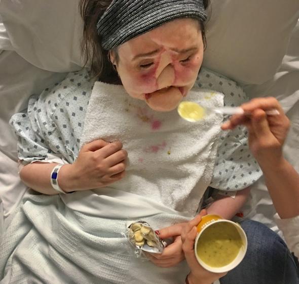 Hành trình của người phụ nữ trẻ nhất thế giới được cấy ghép khuôn mặt từ người hiến tặng và cuộc chiến với tử thần kéo dài 31 tiếng - Ảnh 3.