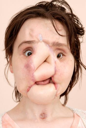 Hành trình của người phụ nữ trẻ nhất thế giới được cấy ghép khuôn mặt từ người hiến tặng và cuộc chiến với tử thần kéo dài 31 tiếng - Ảnh 7.