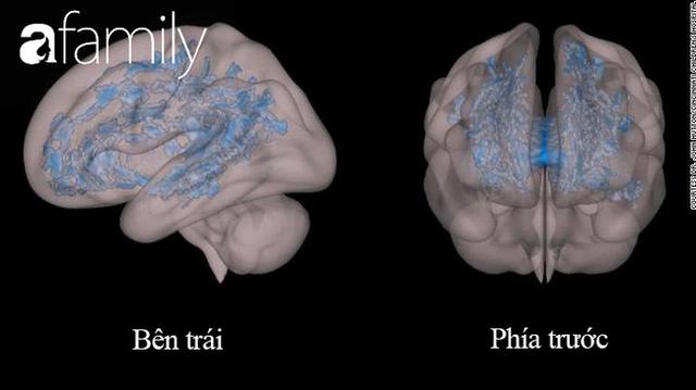 Nhìn bức ảnh chụp não bộ của hai đứa trẻ: thường xuyên đọc sách và thường xuyên xem điện thoại, cha mẹ sẽ biết mình nên làm gì với con - Ảnh 2.