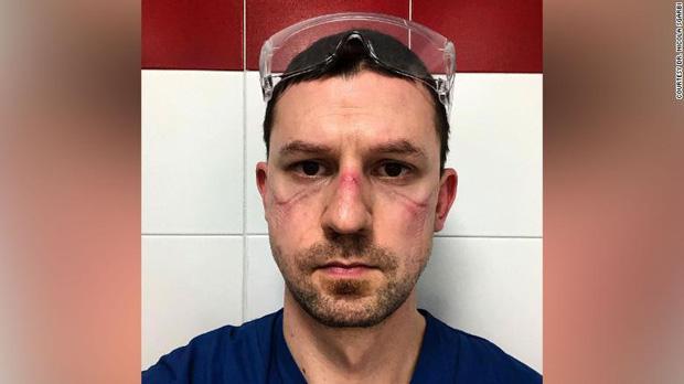 Những khuôn mặt bầm tím, đầy vết hằn của các y bác sĩ đang dẫn đầu trong cuộc chiến chống dịch Covid-19 trên toàn thế giới - Ảnh 1.