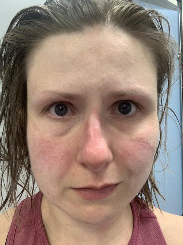 Những khuôn mặt bầm tím, đầy vết hằn của các y bác sĩ đang dẫn đầu trong cuộc chiến chống dịch Covid-19 trên toàn thế giới - Ảnh 2.