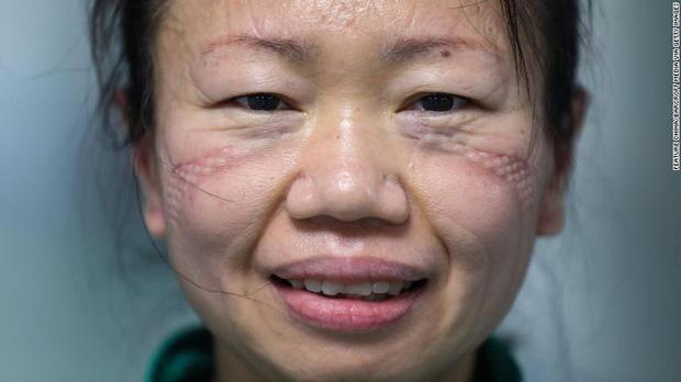 Những khuôn mặt bầm tím, đầy vết hằn của các y bác sĩ đang dẫn đầu trong cuộc chiến chống dịch Covid-19 trên toàn thế giới - Ảnh 5.