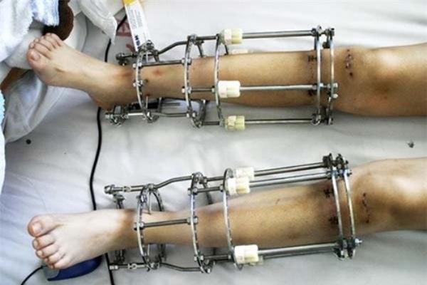 Kéo chân được đánh giá là một trong những ca phẫu thuật đáng sợ nhất thế giới.