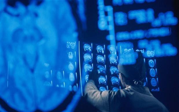 Các bệnh nhân sẽ được theo dõi, chụp cắt lớp thường xuyên để xác định khả năng hồi phục của não bộ.