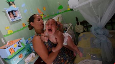 Số trẻ sơ sinh bị mắc chứng teo não ngày càng tăng ở Brazil. Ảnh: BBC