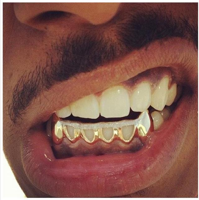 Nếu hết chỗ đeo trang sức, họ có thể gắn vàng vào răng
