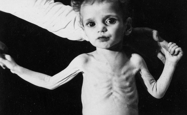 Đối với trẻ em, nhiễm một nồng độ chì thấp cũng có thể để lại di chứng trong suốt phần đời còn lại
