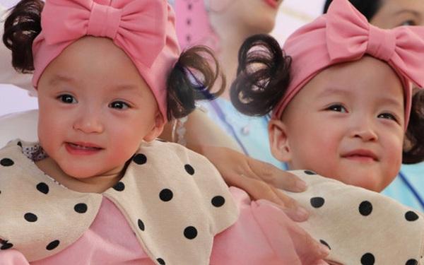 Gần 3 tháng sau ca phẫu thuật tách rời, cặp song sinh Trúc Nhi - Diệu Nhi được xuất viện, xuất hiện cực rạng rỡ và dễ thương