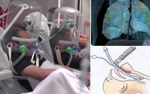 Bệnh nhân nhiễm Covid-19 phải nghiêm trọng thế nào mới phải sử dụng đến máy trợ thở?