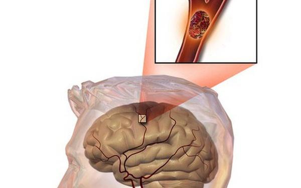 Bất kể nam hay nữ, trên 45 tuổi hãy tránh xa 3 loại thực phẩm, không làm 2 việc để ngừa nhồi máu não và giúp sống thọ