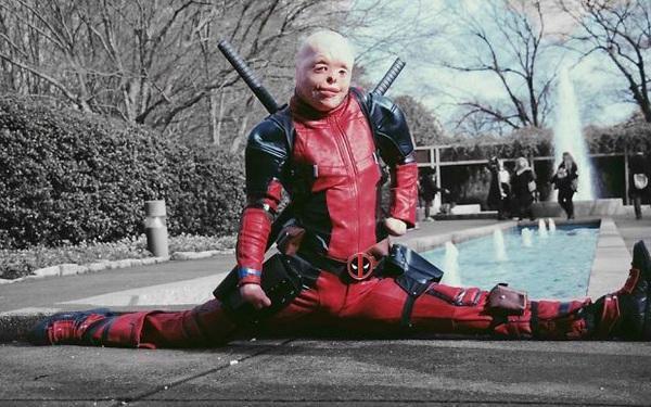 Hóa Deadpool phiên bản đời thực, chàng trai bị bỏng đến biến dạng khuôn mặt trở thành người truyền cảm hứng của MXH