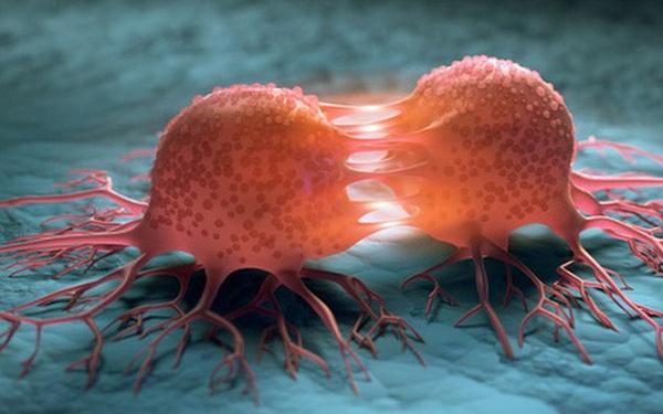 8 nguyên nhân khiến tỷ lệ ung thư ở Việt Nam tăng nhanh; chuyên gia mách 5 cách phòng ngừa tốt nhất