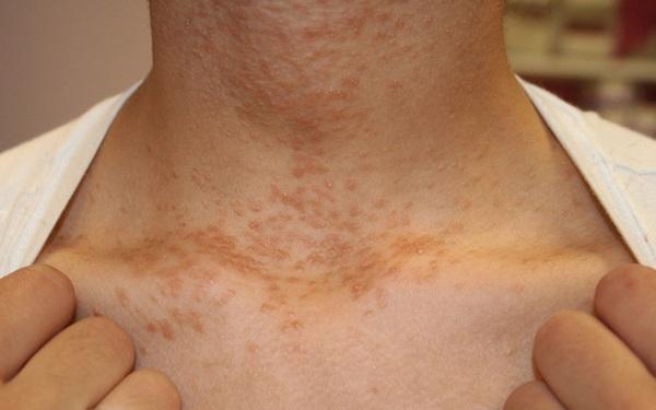 3 thay đổi trên cổ có thể là dấu hiệu sớm của bệnh ung thư mà bạn không nên chủ quan bỏ qua