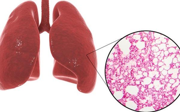 """Phổi là """"chiếc máy hút bụi"""" của cơ thể: BS mách bạn cách làm sạch mỗi ngày để không bị bệnh"""