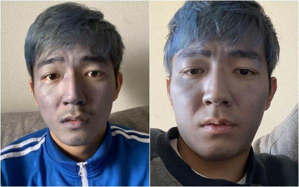 """Dùng nhầm thuốc nhuộm tóc thay sữa rửa mặt, nam thanh niên đau xót khi bị cộng đồng mạng gọi là """"Thanos đời thực"""""""