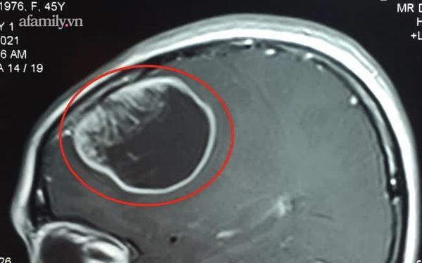 Thường xuyên quên trước quên sau, người phụ nữ tá hỏa phát hiện có khối u to như quả cam trong não