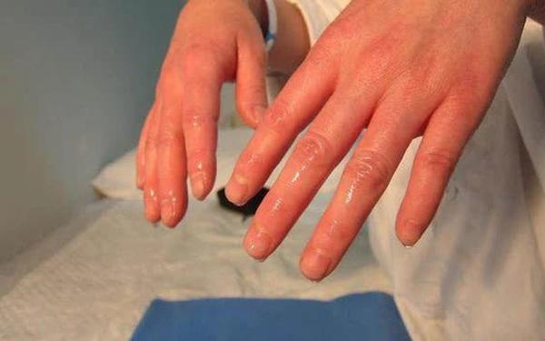6 bộ phận trên cơ thể đổ nhiều mồ hôi đang cảnh báo bệnh tật, trong đó có cả dấu hiệu đột quỵ, đừng bỏ qua