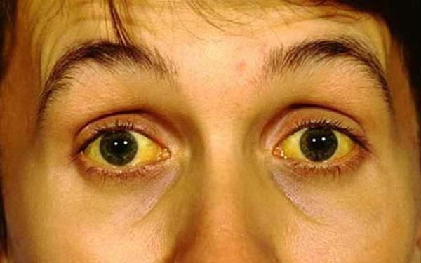 3 biểu hiện bất thường trên khuôn mặt cho thấy bạn đang có nguy cơ mắc ung thư gan